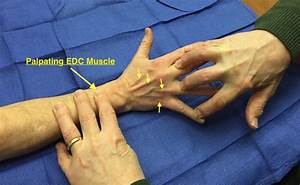 Muscle Test And Tendon Exam  Extensor Digitorum Communis
