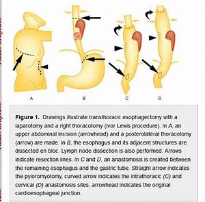 The Ivor Lewis Procedure  First Suggested In 1946