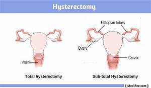 Ovarian Cancer Treatment  Surgery Procedure  Risks And