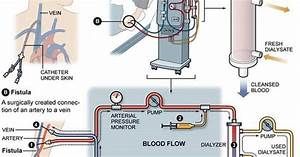 A Terrific Diagram Of How Dialysis Works