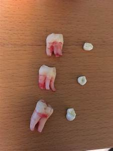 Wisdom Teeth Got Removed This Morning  Here U2019s A Size