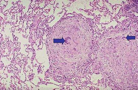 primary tuberculosis geoffrey  reed life