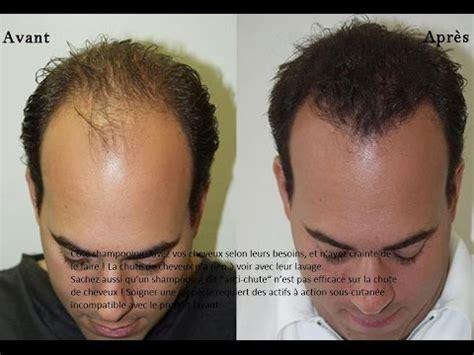 traitement efficace pour les cheveux qui tombent youtube
