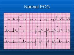 What Does a Normal EKG Reading Look Like