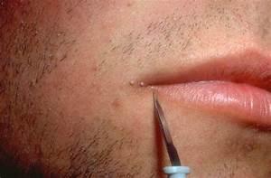 Папиллома лечение мазью вишневского