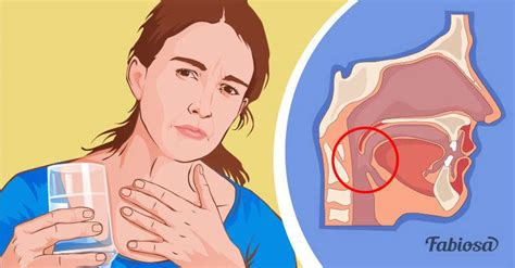 If possible, see your doctor when the allergic reaction is occurring. 6 Possible Causes Of Dry Throat: From Common Cold To Acid Reflux - on Fabiosa