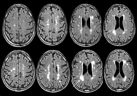 progression  cerebral white matter lesions  alzheimer