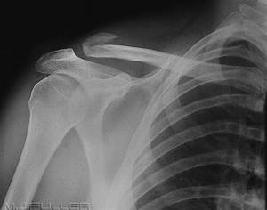 Image Gallery Collarbone X-ray