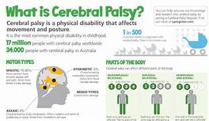 ... Cerebral Palsy; Monoplegic Cerebral Palsy; Quadriplegic Infantile Cerebral Palsy