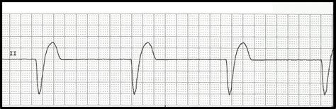 float nurse basic ecg rhythm test
