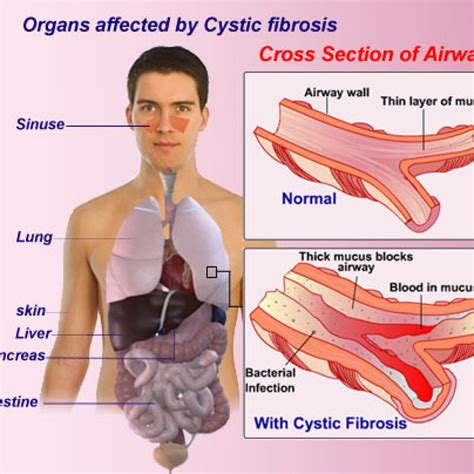 Cystic Fibrosis Airphysio