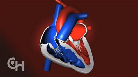 normal heart pumps blood  childrens hospital