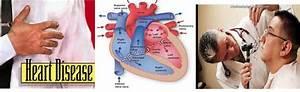 Chd Heart Disease
