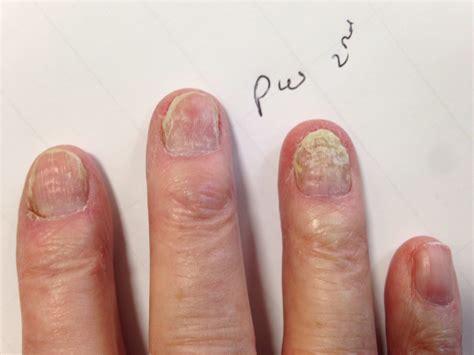 polybalm polyphenol nail bed treatment chemotherapy nail