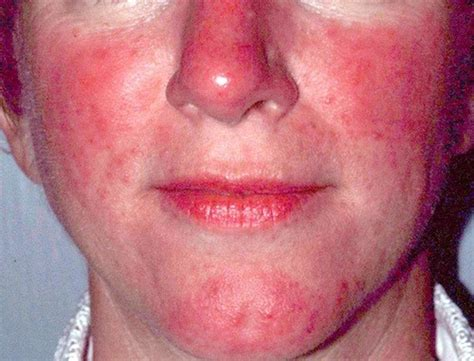 Rosacea Images Lupus Or Rosacea Test May Mislead Rosacea Org