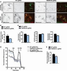 Tmem41b Is A Novel Regulator Of Autophagy And Lipid
