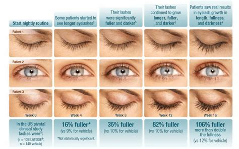 Thinning Lashes & Brows? Lash Extensions & Latisse Deliver!