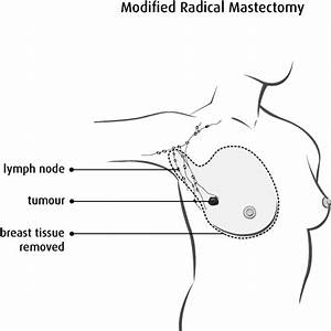 Surgery For Breast Cancer
