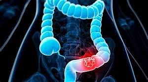Research, And, Treatment, For, Colorectal, Cancer