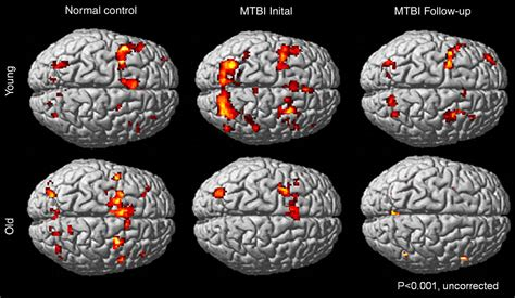 rsna older patients recover  slowly  concussion