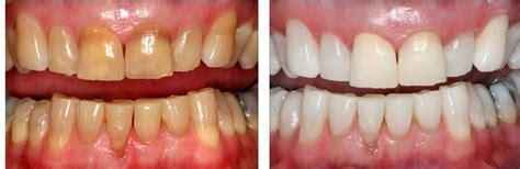 comment fonctionne le blanchiment dentaire