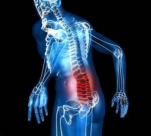 Боли остеохондроз лечение в домашних условиях