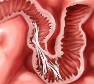 Small Bowel Obstruction Symptoms  U0026 Treatment