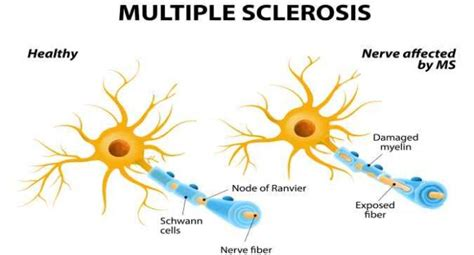 World Multiple Sclerosis Day 2018  What Is Multiple. How Fast Of Internet Do I Need. San Antonio Bathroom Remodel. Kaplan Associates Degree Family Lawyer Dallas. Online School For Adults Moving Washington Dc