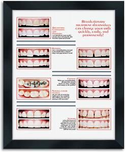 Dental office wall art tavoos