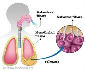 mesothelioma  symptoms diagnosis treatment