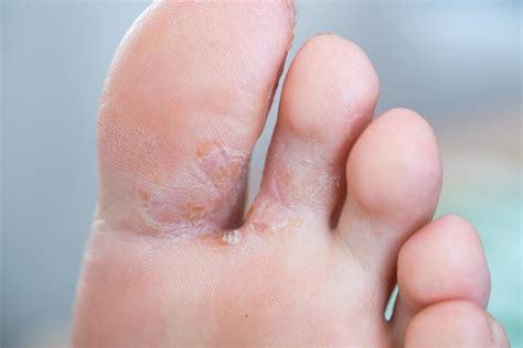 hyperglycemia symptoms   treatments