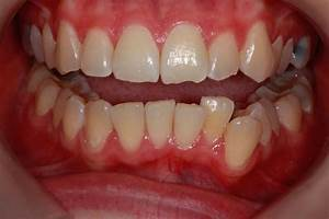 Crowded Top And Bottom Teeth Before And After