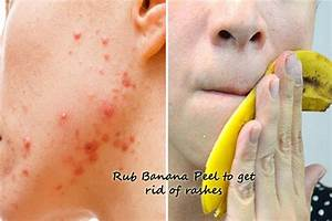 Get rid of rashes with 10 simple Skin Rash Home Remedies  Allergy Rid