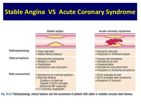 Stable angina pain