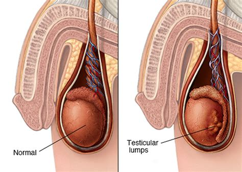 Testicular Cancer Symptoms Causes Lump Survival Rate