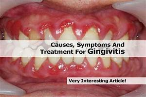Gingivitis and Periodontitis are Common Form of Gum ...