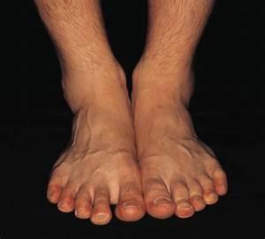 Ветпрепараты от грибка ногтей