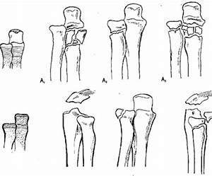 Какую мазь при растяжении коленного сустава