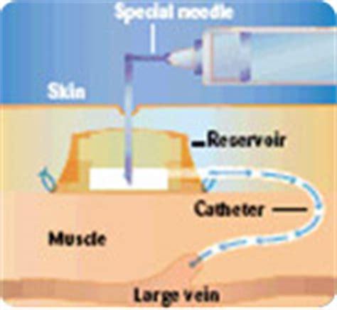 la chambre implantable accès veineux central mon hémophilie
