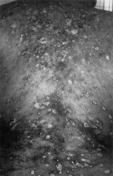 Lichen planus pemphigoides: Combination therapy with
