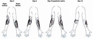 Body Chart Pain Drawings Showing Distribution Of Pain In