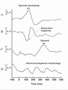 U2014four Patterns Of Central Auditory System Maturation Using The P1