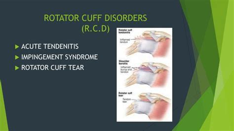 Chronic Shoulder Disorders Powerpoint Presentation