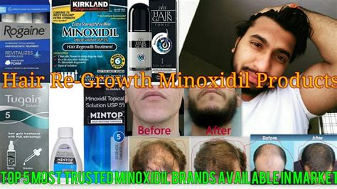 Best Minoxidil Products For Hair Regrowth   Top 5