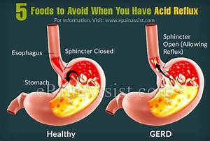 Acid Reflux - Foods To Avoid