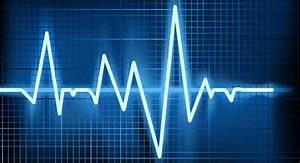 Hartslagzone berekenen: Intensiteit Cardio afstemmen