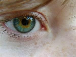 Central Heterochromia by thelifestream on DeviantArt