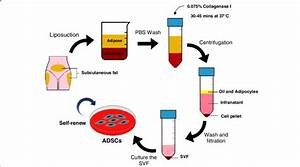 Isolation Process To Obtain Adscs From Human Lipoaspirate