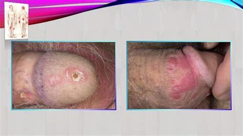 Severe psoriasis treatment