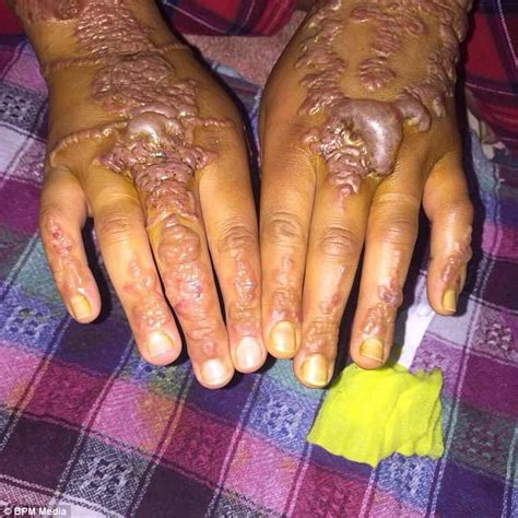 henna tattoo nightmare  british holidaymaker  morocco